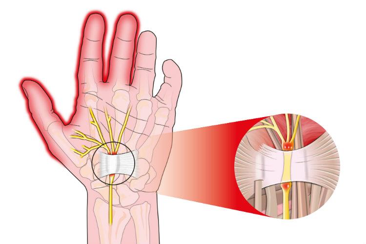 sindrome del tunnel carpale lucaserra 2