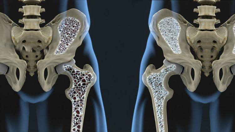 osteoporosi luca serra neurochirurgo