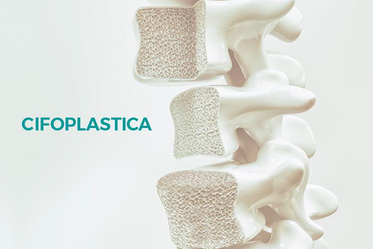 luca serra neurochirurgo cifoplastica