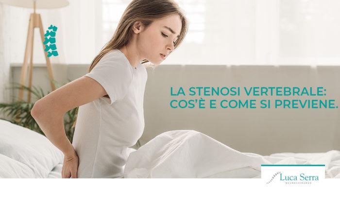 stenosi-vertebrale-come-prevenire-luca-serra